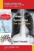 Cover-Bild zu Down Syndrome (eBook) von Eckdahl, Todd T.