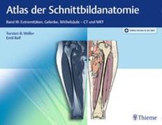 Cover-Bild zu Atlas der Schnittbildanatomie. Band 03 von Möller, Torsten Bert