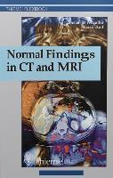 Cover-Bild zu Normal Findings in CT and MRI (eBook) von Moeller, Torsten Bert