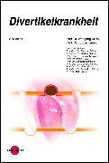 Cover-Bild zu Divertikelkrankheit (eBook) von Kruis, Wolfgang
