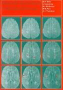 Cover-Bild zu Miller, David H. (Institute of Neurology, London): Magnetic Resonance in Multiple Sclerosis