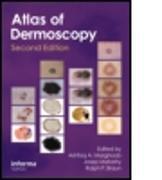 Cover-Bild zu An Atlas of Dermoscopy von Marghoob, Ashfaq A (Hrsg.)
