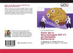 Cover-Bild zu Valor de la Neuroimagen PET CT de Epilepsia Refractaria