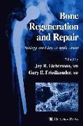 Cover-Bild zu Bone Regeneration and Repair von Lieberman, Jay R. (Hrsg.)