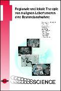 Cover-Bild zu Regionale und lokale Therapie von malignen Lebertumoren - eine Bestandsaufnahme (eBook) von Boese-Landgraf, Joachim