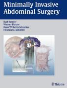 Cover-Bild zu Minimally Invasive Abdominal Surgery (eBook) von Kremer, Karl