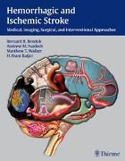 Cover-Bild zu Bendok, Bernard R. (Hrsg.): Hemorrhagic and Ischemic Stroke