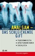 Cover-Bild zu Amalgam - das schleichende Gift von Kern, Peter