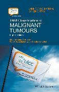 Cover-Bild zu TNM Classification of Malignant Tumours (eBook) von Wittekind, Christian (Hrsg.)