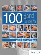 Cover-Bild zu 100 Hand Cases (eBook) von Boyer, Martin I.