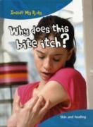 Cover-Bild zu Why does this Bite Itch? (eBook) von Parker, Steve