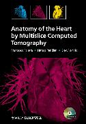Cover-Bild zu Anatomy of the Heart by Multislice Computed Tomography (eBook) von Pandian, Natesa