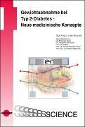 Cover-Bild zu Gewichtsabnahme bei Typ 2-Diabetes - Neue medizinische Konzepte von Uwe, Machleit