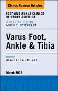 Cover-Bild zu Varus Foot, Ankle, and Tibia, An Issue of Foot and Ankle Clinics - E-Book (eBook) von Younger, Alastair S. E.