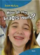 Cover-Bild zu Parker, Steve: How do my Braces Work? (eBook)