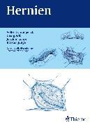 Cover-Bild zu Hernien (eBook) von Conze, Klaus Joachim (Hrsg.)