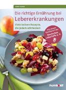 Cover-Bild zu Die richtige Ernährung bei Lebererkrankungen von Iburg, Anne