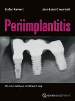 Cover-Bild zu Periimplantitis von Renvert, Stefan