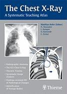 Cover-Bild zu The Chest X-Ray: A Systematic Teaching Atlas von Hofer, Matthias (Hrsg.)