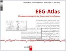 Cover-Bild zu EEG-Atlas von Blume, Warren T.